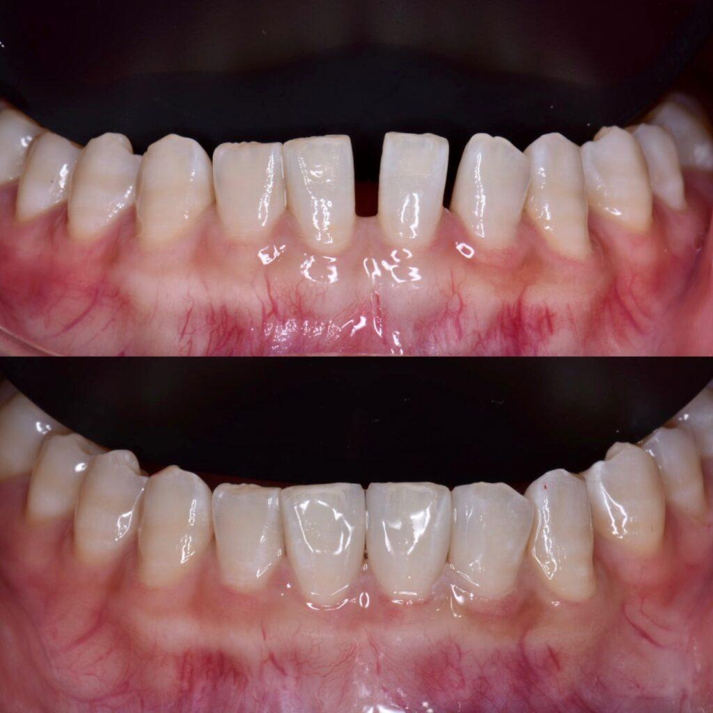 下顎の正中離開、すきっ歯のダイレクトボンディング。