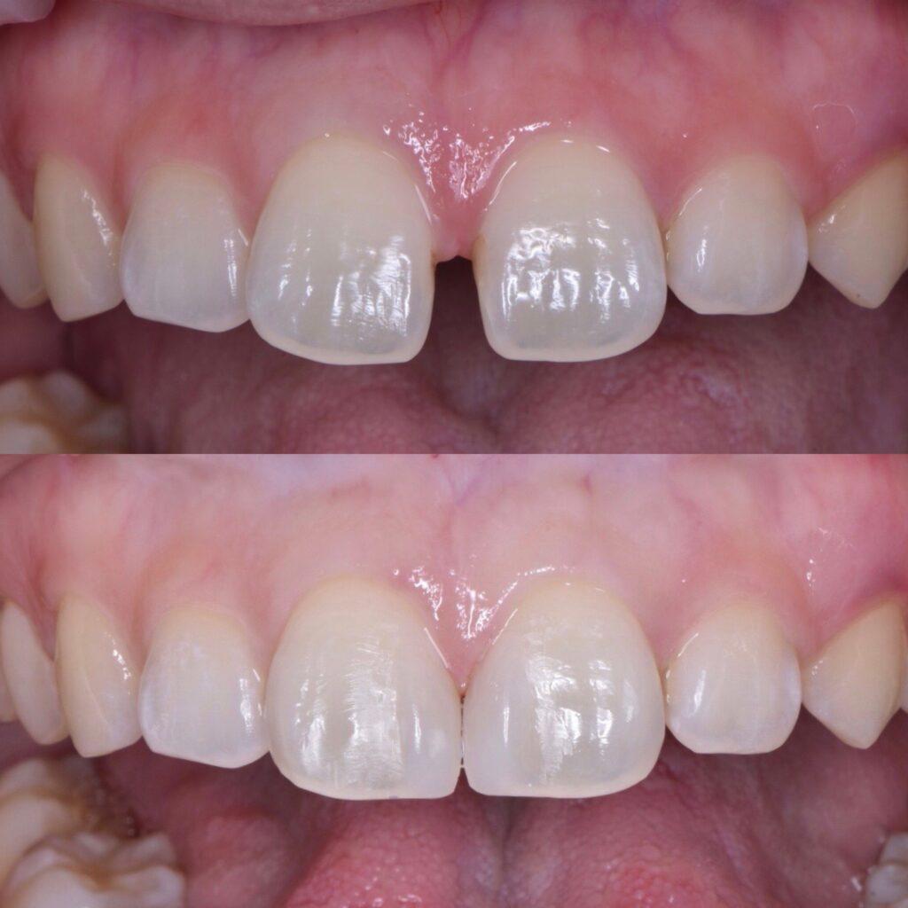 上顎の正中離開、すきっ歯のダイレクトボンディング