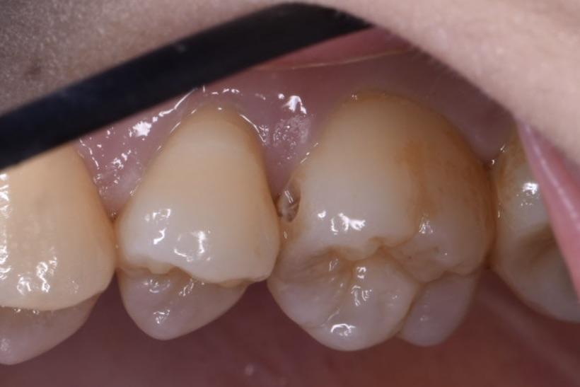 歯の間の虫歯