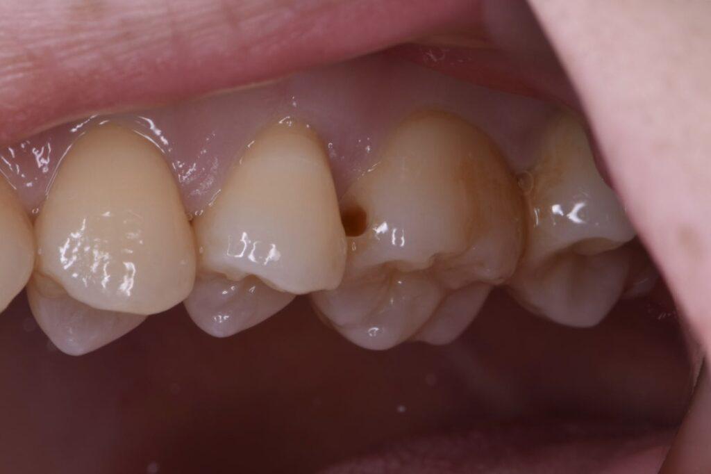 歯の間の虫歯を除去したところ