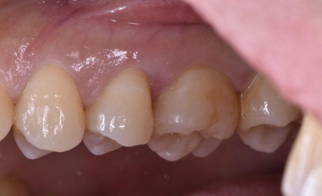 虫歯の穴を埋めたところ