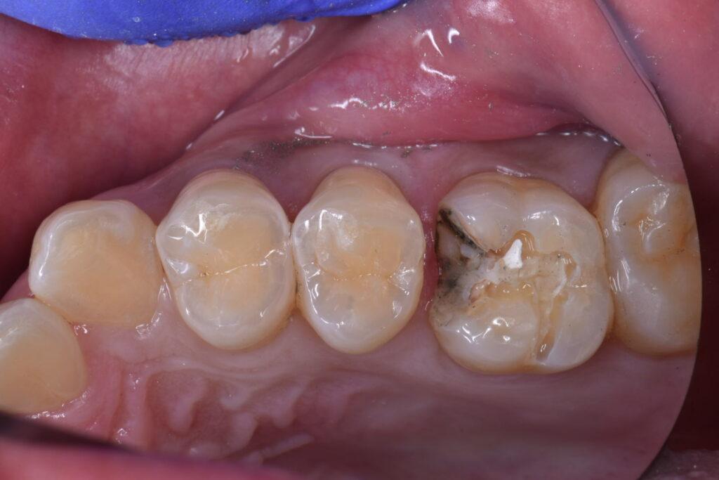 銀歯を除去したところ