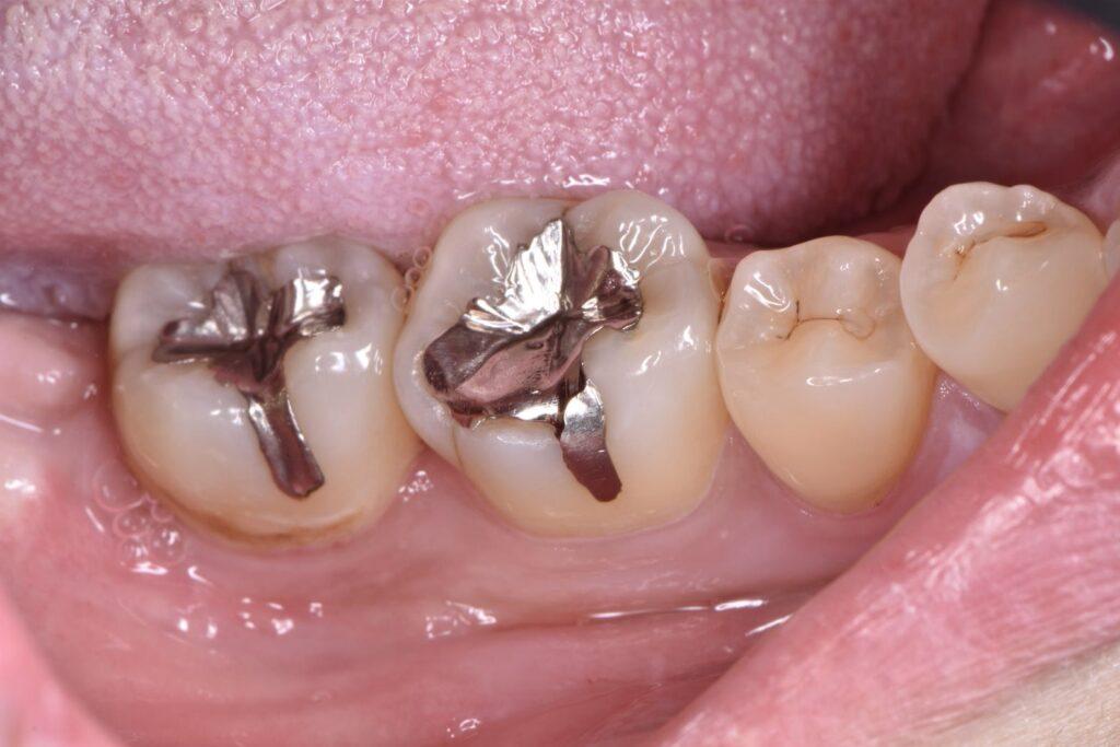 浮いた銀歯