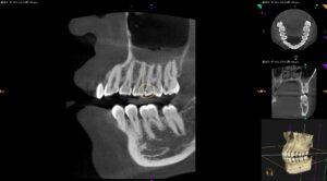 ダイレクトボンディングの術前CT